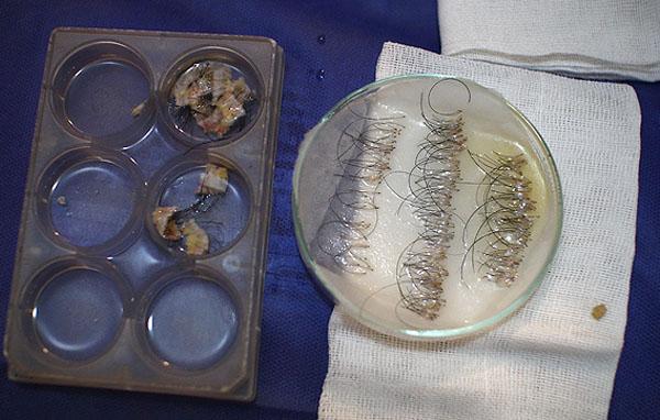 روش ساخت داروی بیهوشی در خانه (تصاویر) عمل کاشت موی طبیعی یکی از روش های درمان