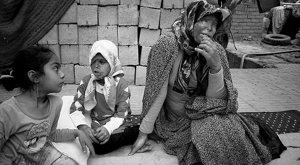 اسیدپاشی روی مادر و دختر,تصاویر دلخراش از اسیدپاشی