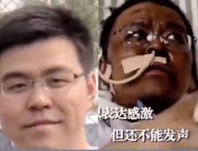 (تصاویر) عجیب اما واقعی؛ کرونا چهره دو پزشک چینی را سیاه کرد