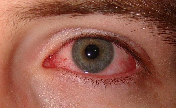 سندرم دیجیتالی چشم؛ آفت جدید ویروس کرونا