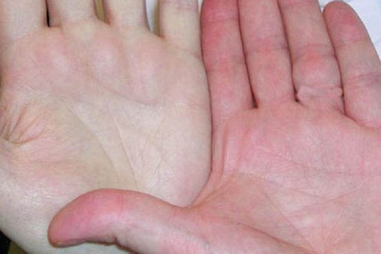 کم خونی؛ نشانه ها، دلایل و درمانهای آن