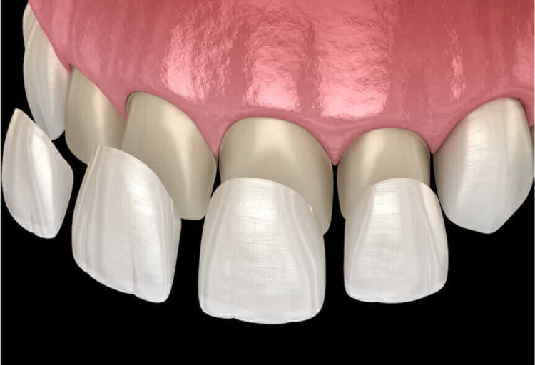 لیست قیمت لمینت متحرک دندان در اسفند 1399