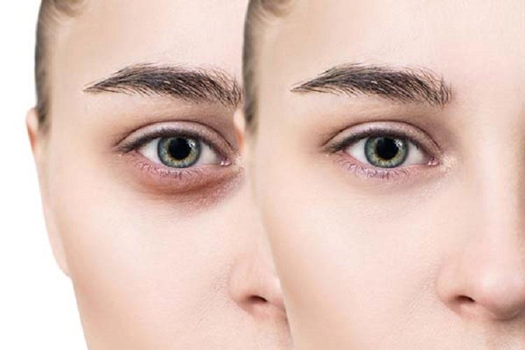 کربوکسی تراپی چگونه به جوانسازی پوست کمک میکند؟