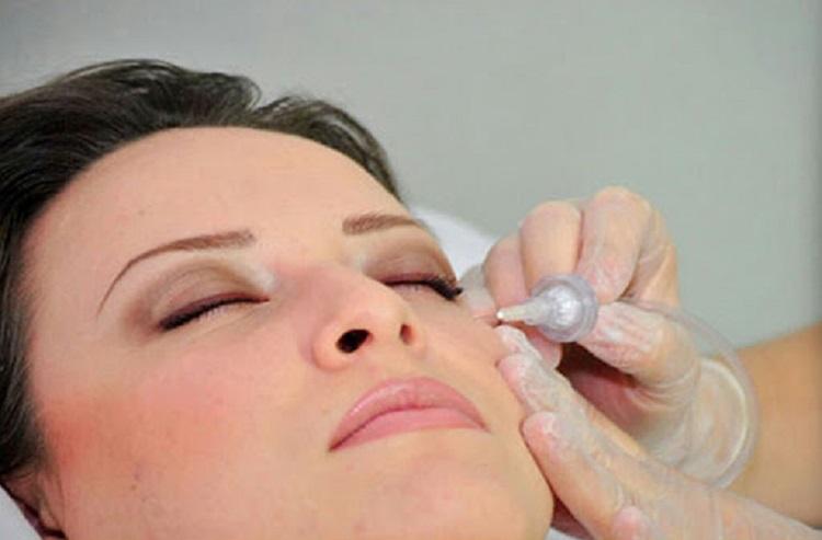 جوانسازی پوست با کربوکسی تراپی و هر آنچه در مورد این روش باید بدانید