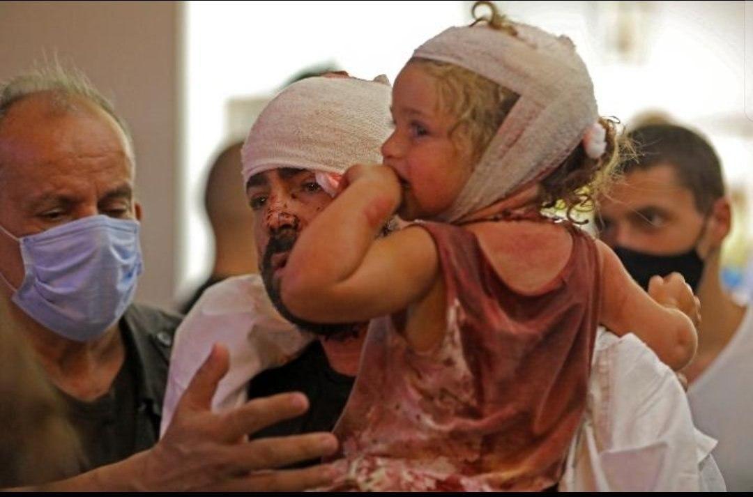 تصاویری تلخ از مجروحان انفجار بیروت