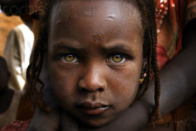 کودکی که تمام خانواده خود را از دست داده است