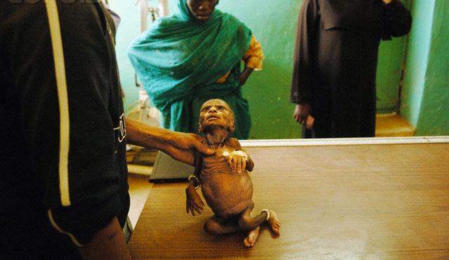 کودکان دارفور در جدال با مرگ